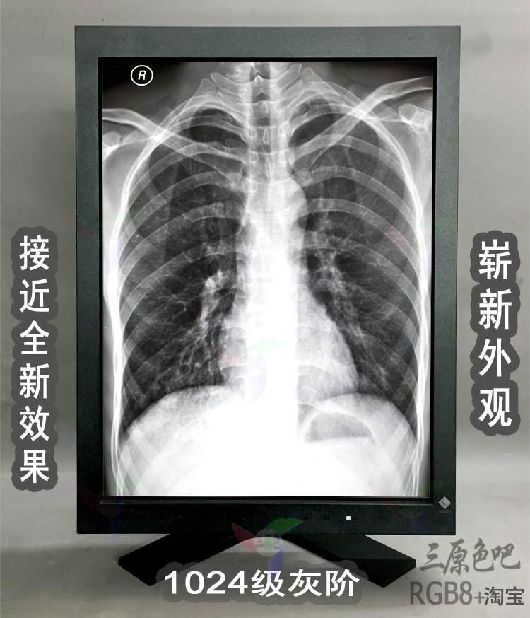 医疗医学EIZO艺卓灰阶黑白显示器监视器